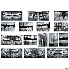 Roylco® Dental X-Rays