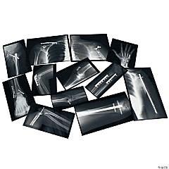 Roylco® Fixed Bones X-Rays